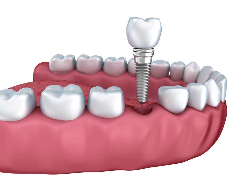 https://tuncurrydentalcare.com.au/wp-content/uploads/2021/04/Dental-Crown-1024x758-1.jpg